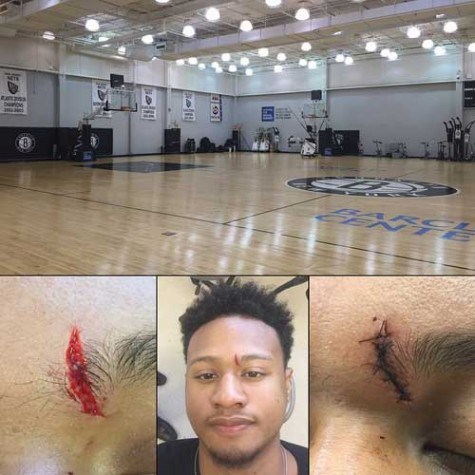 Bobby Ray Parks injured in Brookly Nets workout