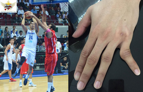 Japeth Aguilar injured finger